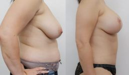 Breast Lift with implants 250cc surgery before and after