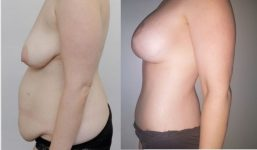 Breast Lift with implants 300cc surgery before and after