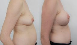 breast lift with implants 325cc surgery before and after