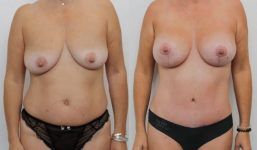 Breast Lift with implant 355cc surgery before and after