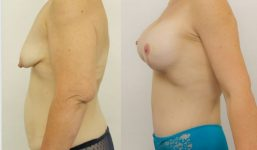 Breast Lift with implant 425cc surgery before and after