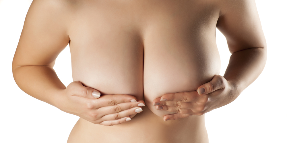 Needs of BREAST REDUCTION SURGERY
