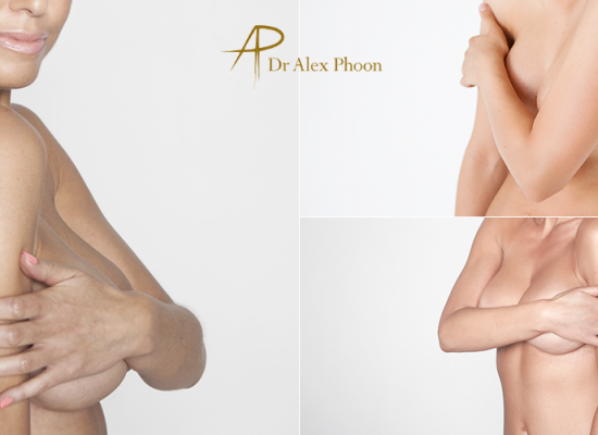 Breast Augmentation | Breast Lift