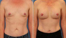 Breast Augmentation 300cc Demi Athletic Look