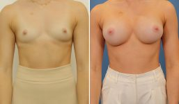 Breast Augmentation 380cc Demi Athletic Look