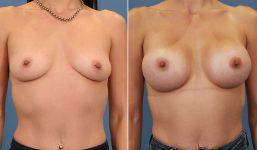 Breast Augmentation 400cc Full Enhanced voluptuous
