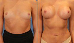 Breast Augmentation 340cc Demi Enhanced voluptuous