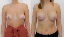 Breast Augmentation 375cc Enhanced voluptuous
